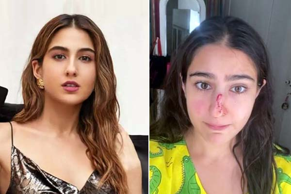 Sara Ali Khan cut her nose, released the video